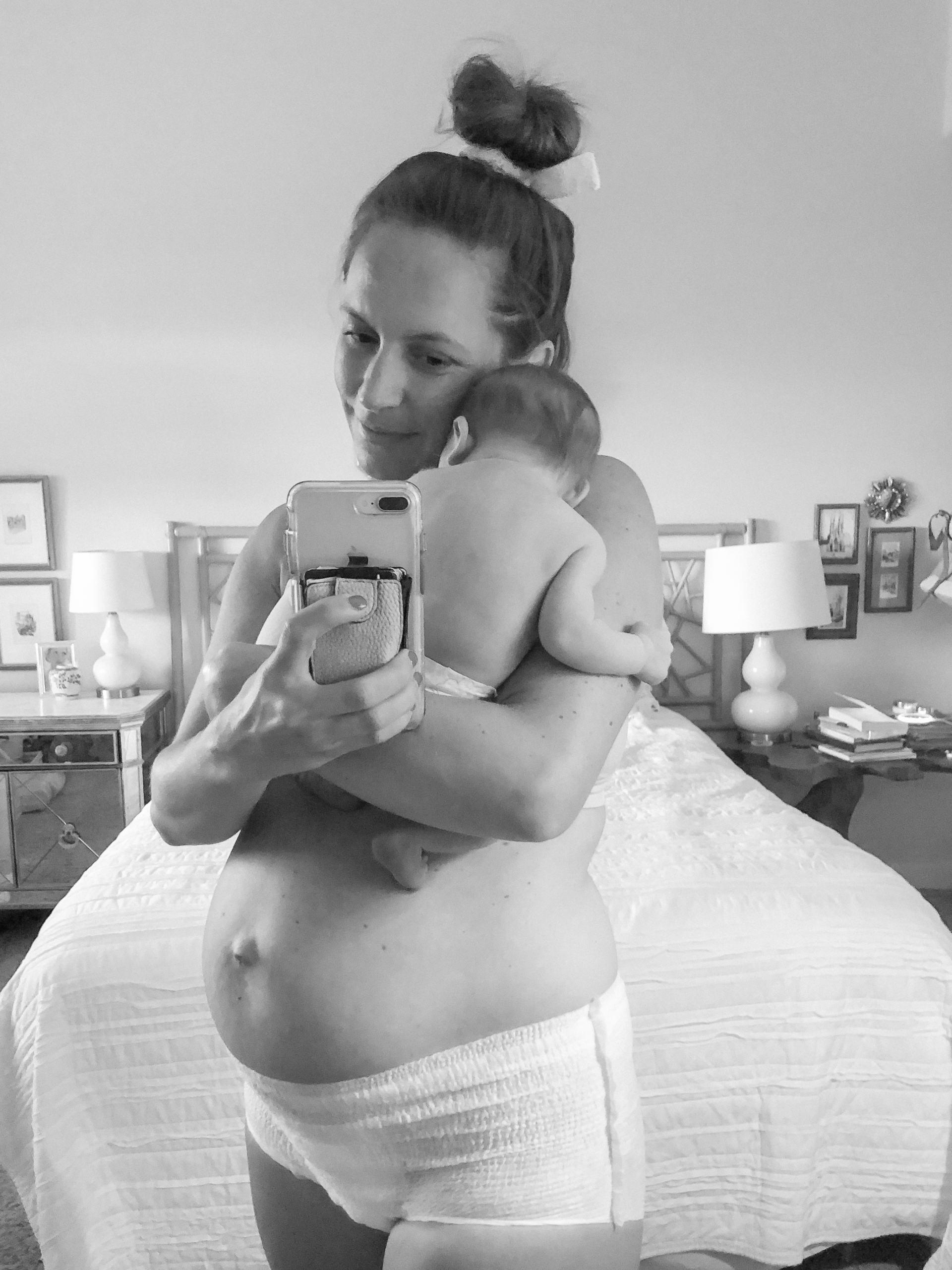 3 days postpartum - postpartum body